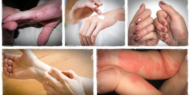 How to get rid of eczema forever